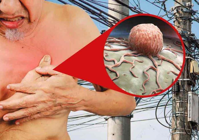 грязное электричество вызывает раковые заболевания